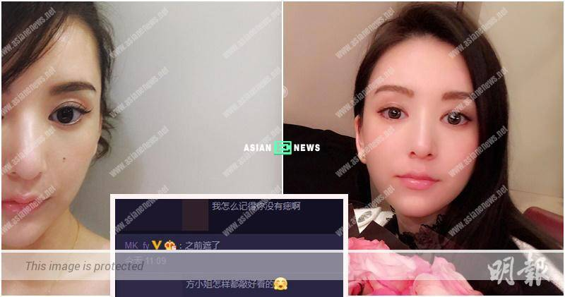 Aaron Kwok's wife, Moka Fang admits her face has a small mole
