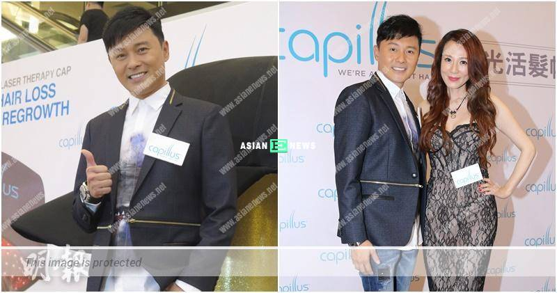 Raymond Cho prefers to have fat belly than hair loss problem