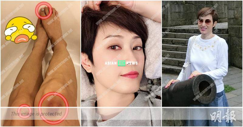 Monica Chan shows photo of her broken toe nail: It is very painful