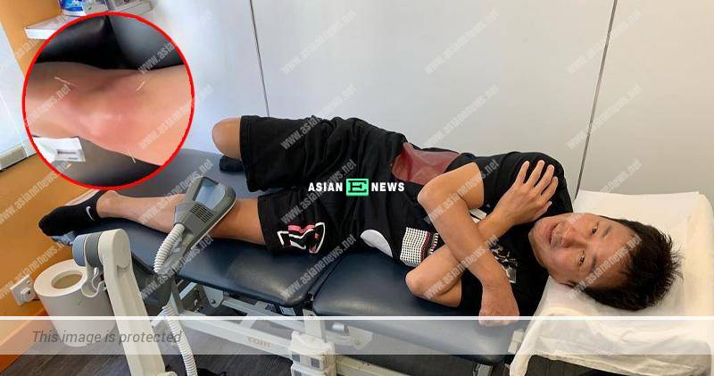 Wayne Lai is injured and goes for acupuncture