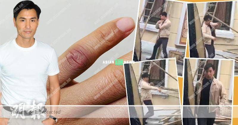 Ruco Chan blocks the bamboo and ends up with swollen finger