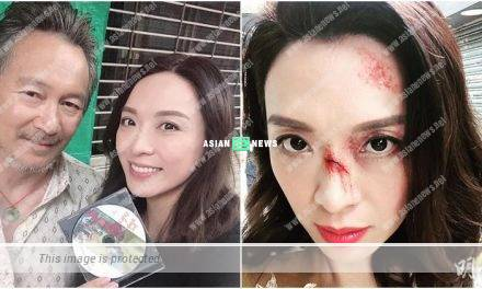 """Alice Chan's face is covered with """"wounds""""? She said it is a small issue"""