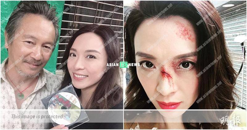 "Alice Chan's face is covered with ""wounds""? She said it is a small issue"