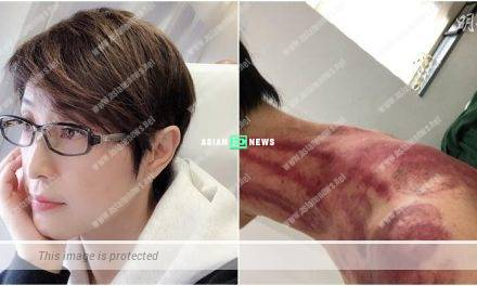 "Monica Chan has bruises after going for ""gua sha"""