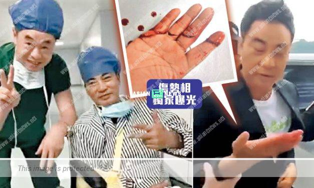 Which is the truth? Simon Yam's attack is concluded with several reasons