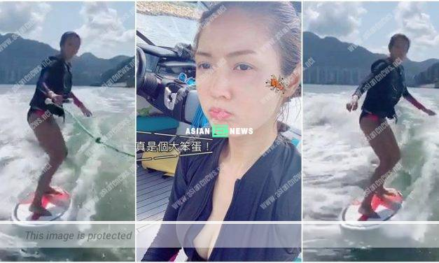 Toby Chan went for water surfing and her left face was hit by the board