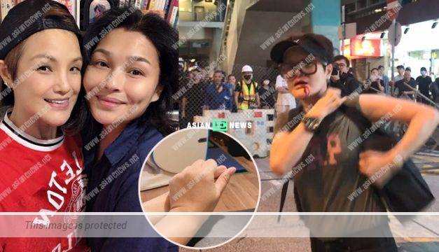 Hong Kong Protests: Celine Ma was wounded and went for stitches at the hospital
