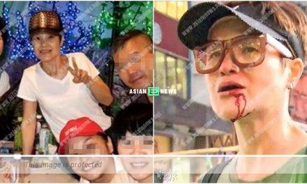 Celine Ma has a wound near her mouth and continues to look energetic