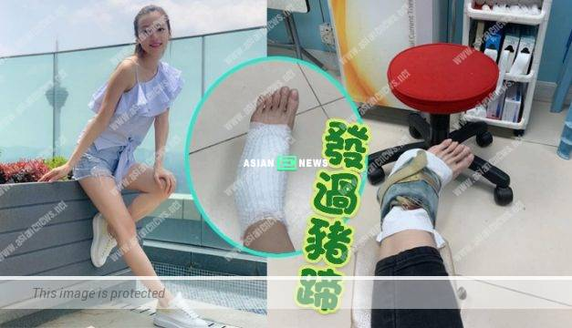 Charmaine Li had a bone displacement after failing to discover there was a staircase