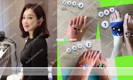 Adia Chan shows photos of her left foot injury