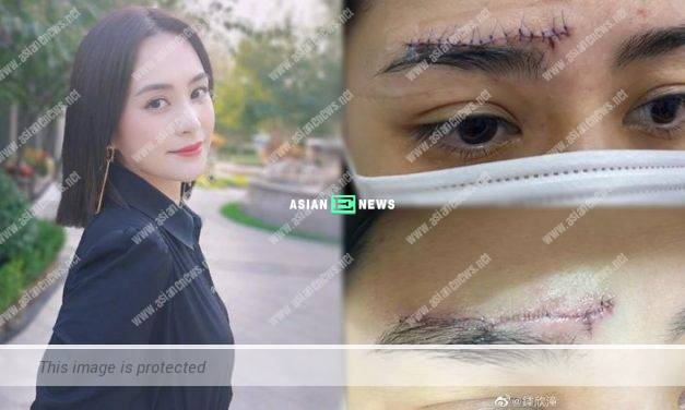 Gillian Chung shows her wound and uses concealer to hide her scar