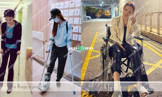 Grace Wong's leg is injured; She feels disappointed when her work is cancelled
