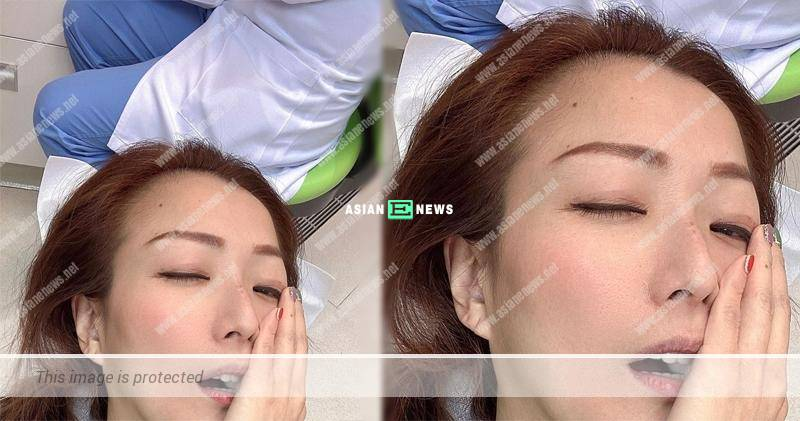 Sammi Cheng tries hard to control her tears at the dental clinic