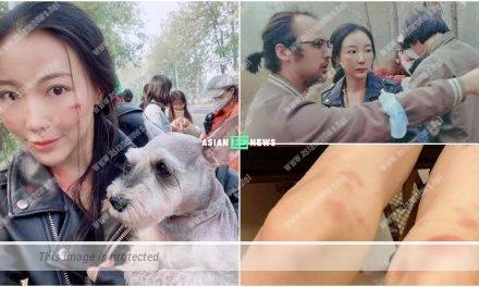 Poor Sire Ma has bruises after shooting action scenes
