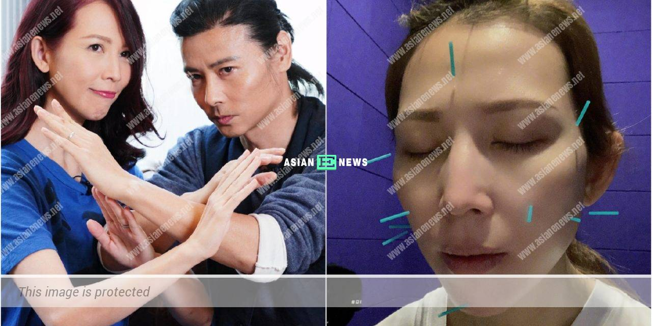 Ada Choi and her husband Max Zhang go for acupuncture together