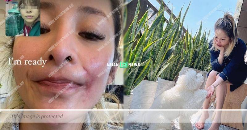 Taiwanese singer Elva Hsiao's face has scar after bitten by her dog