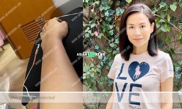 Jessica hsuan goes for acupuncture because of her finger injury
