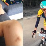 Netizens feel heart pain for Louisa Mak when her legs are covered with bruises
